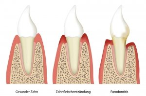 keimtest-parodontose